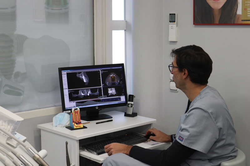 estudio-radiografico