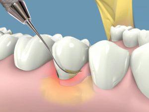 curetaje-periodontal