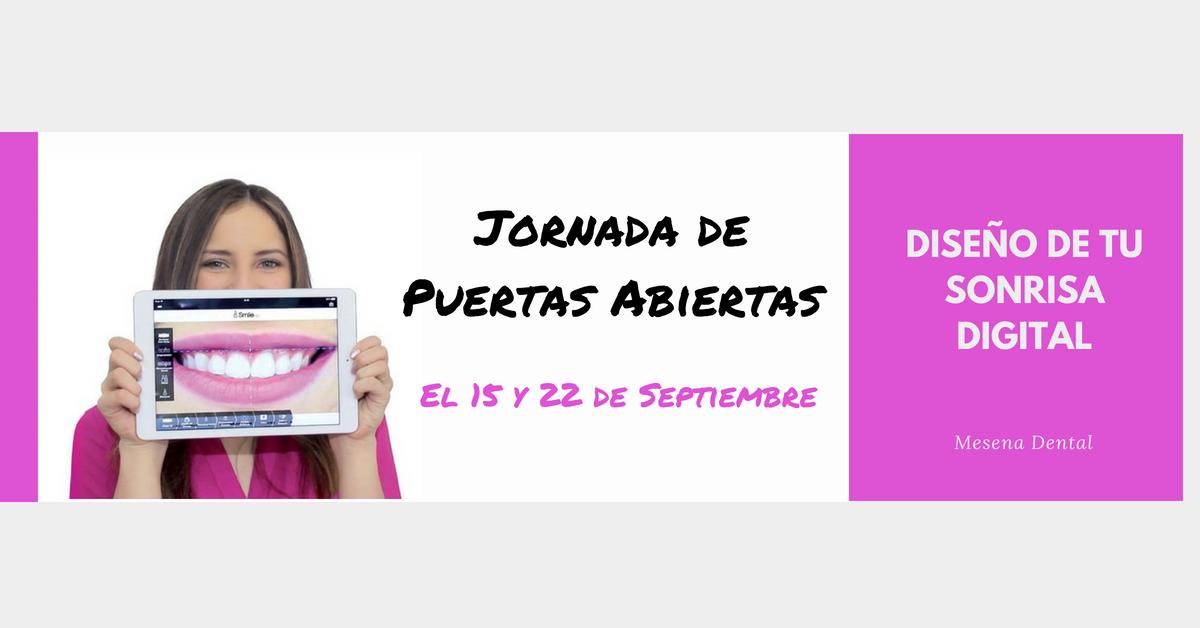 ORNADA-DE-PUERTAS-ABIERTAS-DISENO-DE-SONRISA-DIGITAL-fb