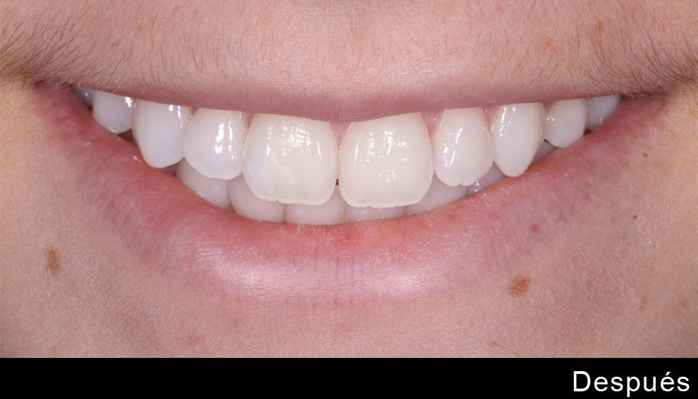 blanqueamiento-dental-despues