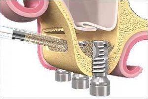 elevación de seno dental