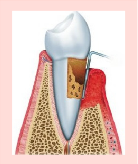 periodontitis-aguda