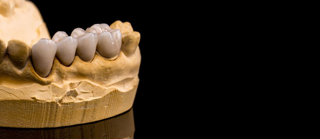 protesis-dental-fija